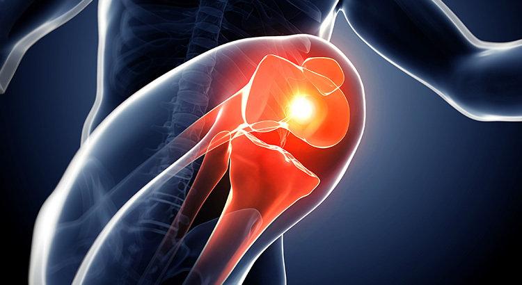 Imagem Fisioterapia